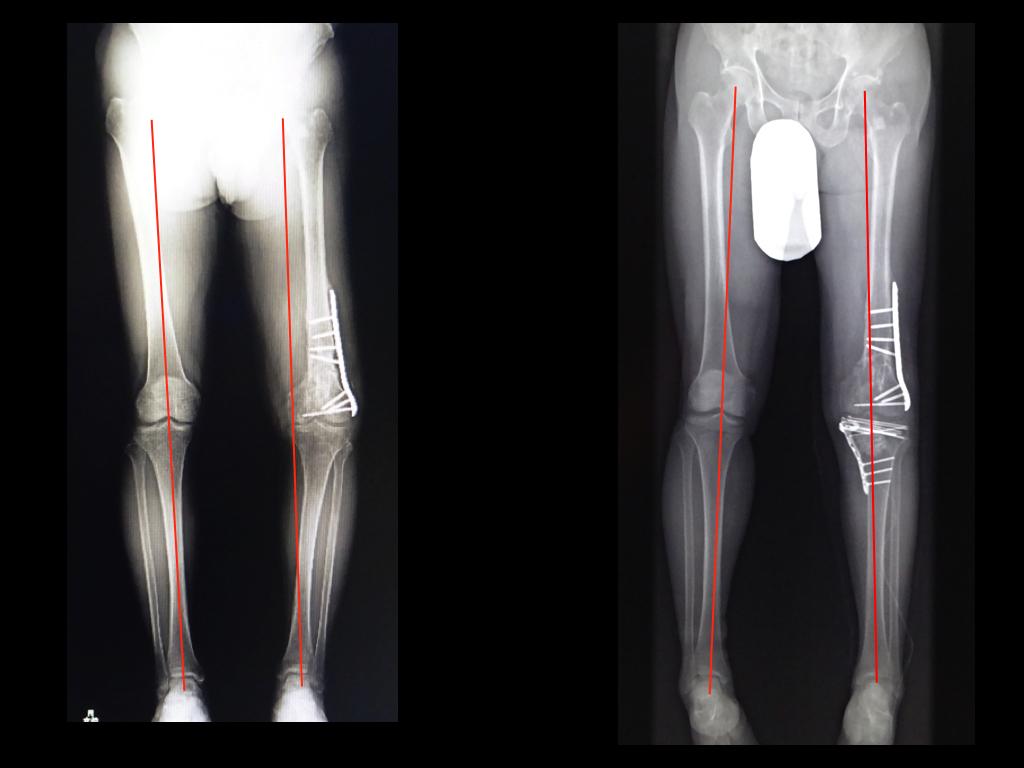 膝蓋骨 骨折 完治 まで